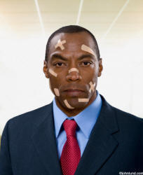 picture of an injured ethnic african american business man